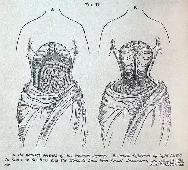 歷史上最詭異的審美都有哪些?裝病、束腰、纏足、涂黑牙...